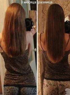 """Выпадение волос после установки спирали """"Мирена"""""""